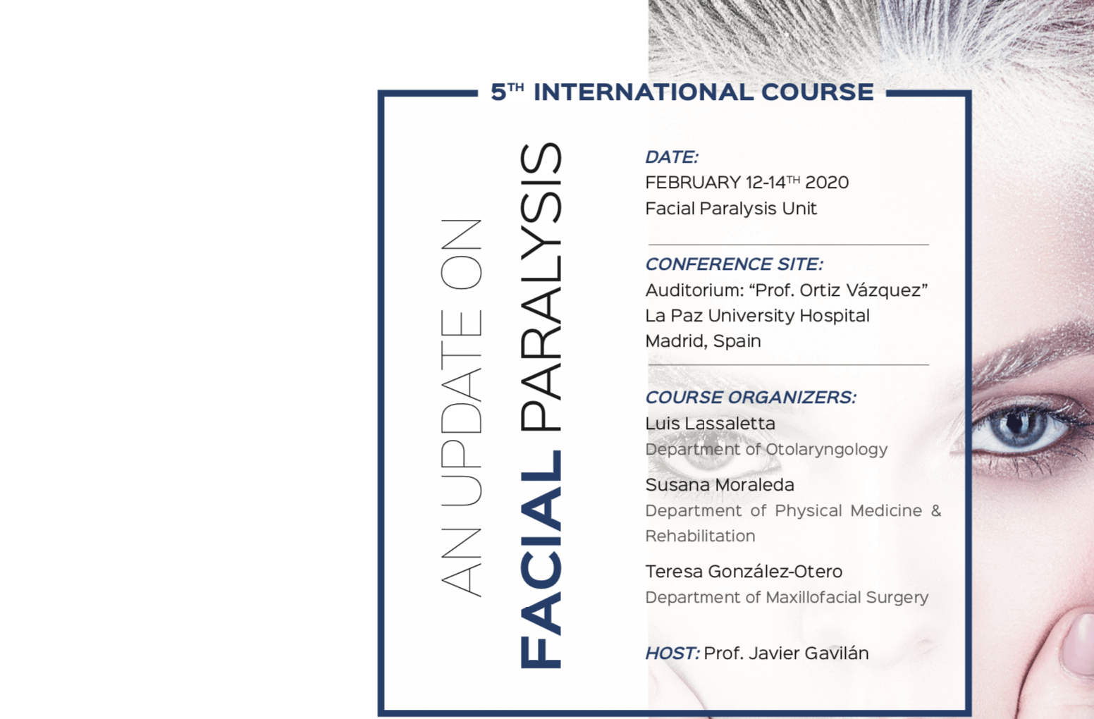 course facial paralysis
